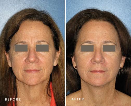 HSUSURGERY_facelift-neck-lift-before-after-2.jpg
