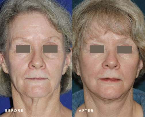HSUSURGERY_facelift-neck-lift-before-after-8.jpg
