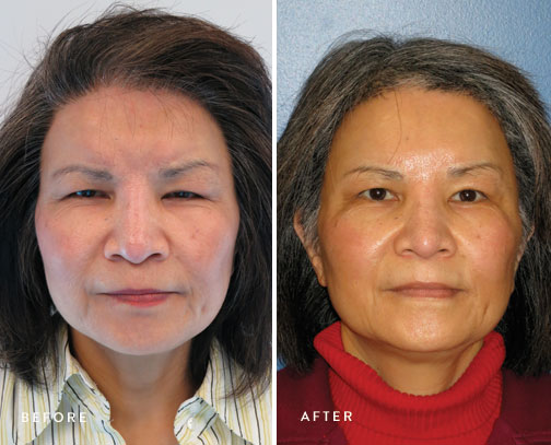 HSUSURGERY_brow-lift-before-after-3.jpg