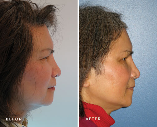 HSUSURGERY_brow-lift-before-after-1.jpg