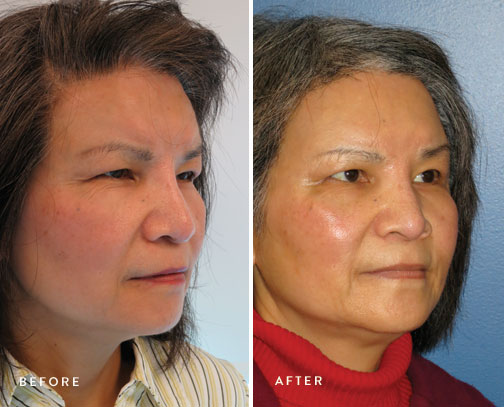 HSUSURGERY_brow-lift-before-after-2.jpg