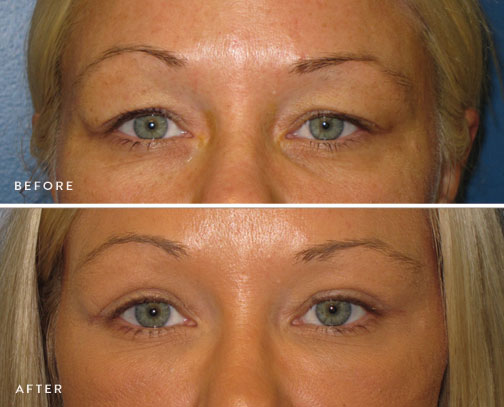 HSUSURGERY_eyelid-surgery-before-after-1.jpg