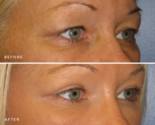 HSUSURGERY_eyelid-surgery-before-after-2.jpg