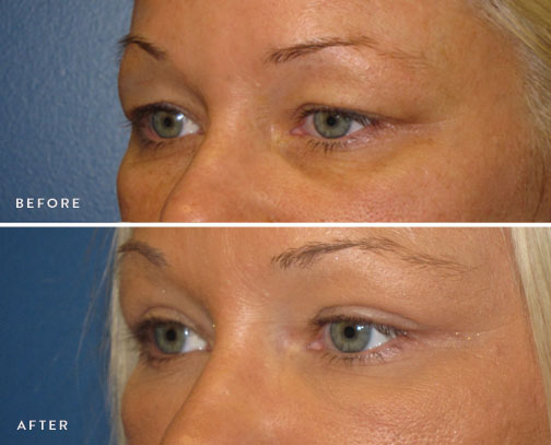 HSUSURGERY_eyelid-surgery-before-after-4.jpg