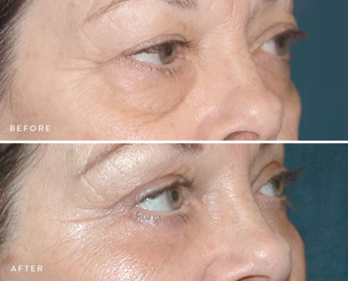 HSUSURGERY_eyelid-surgery-before-after-5.jpg