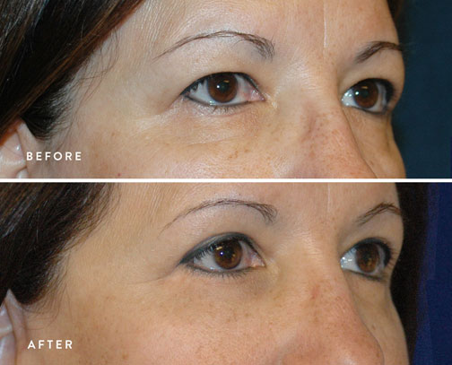 HSUSURGERY_eyelid-surgery-before-after-6.jpg