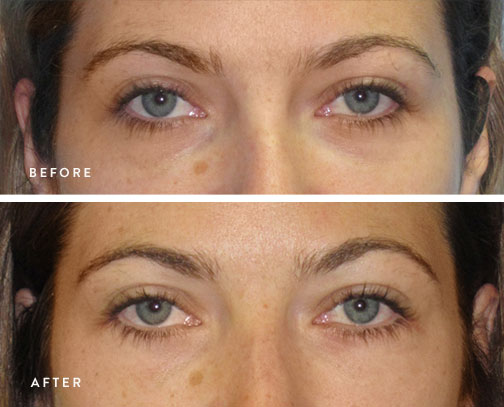 HSUSURGERY_lower-eyelid-surgery-before-after-7.jpg