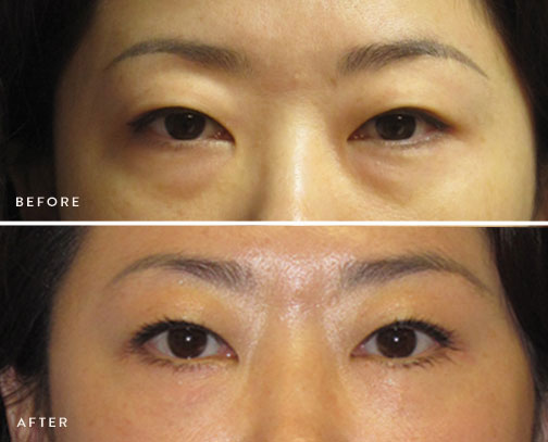 HSUSURGERY_lower-eyelid-surgery-before-after-1.jpg
