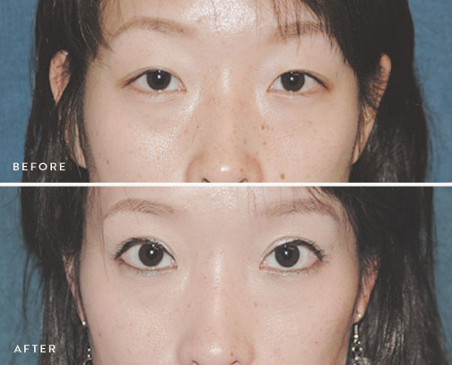 asian-eyelid-surgery-before-after-1.jpg