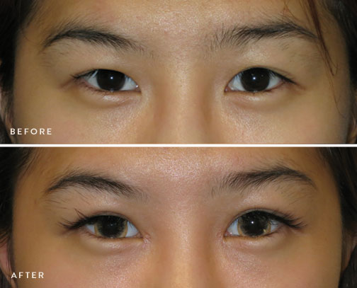 HsuPlasticSurgery_asian-eyelid-surgery-before-after-2.jpg