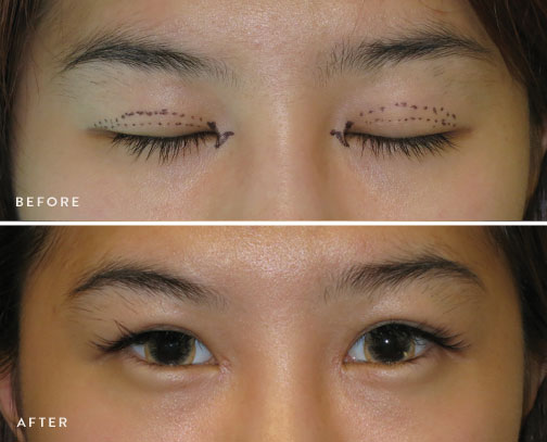 HsuPlasticSurgery_asian-eyelid-surgery-before-after-3.jpg