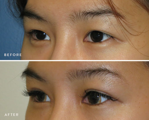 HsuPlasticSurgery_asian-eyelid-surgery-before-after-4.jpg