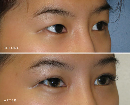 HsuPlasticSurgery_asian-eyelid-surgery-before-after-5.jpg
