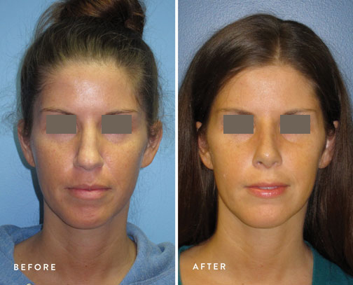 HSUSURGERY_rhinoplasty-before-after-7.jpg
