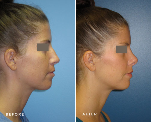 HSUSURGERY_rhinoplasty-before-after-8.jpg