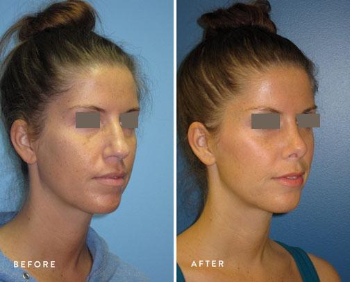 HSUSURGERY_rhinoplasty-before-after-9.jpg