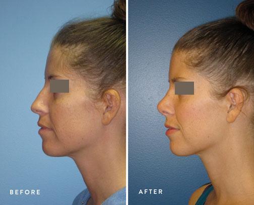 HSUSURGERY_rhinoplasty-before-after-10.jpg