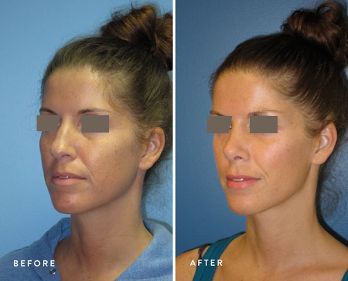 HSUSURGERY_rhinoplasty-before-after-11.jpg