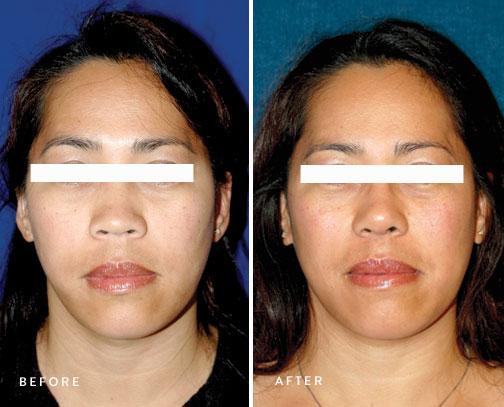 HSUSURGERY_rhinoplasty-before-after-13.jpg