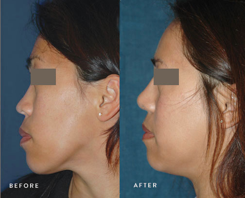 Best+Los+Angeles+Plastic+Surgery+-+Rhinoplasty+Before+and+After.jpg