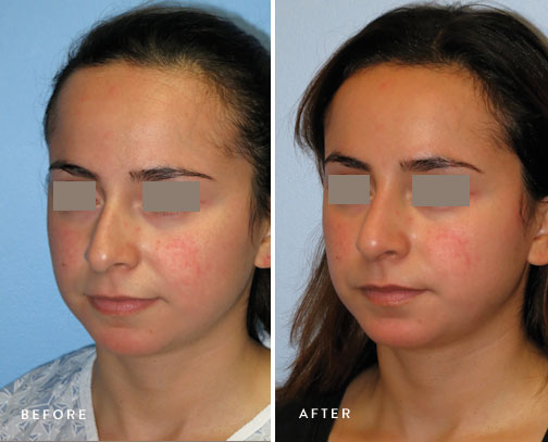 HSUSURGERY_rhinoplasty-before-after-15.jpg