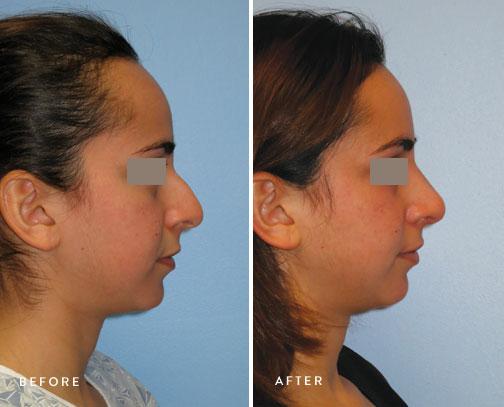 HSUSURGERY_rhinoplasty-before-after-16.jpg
