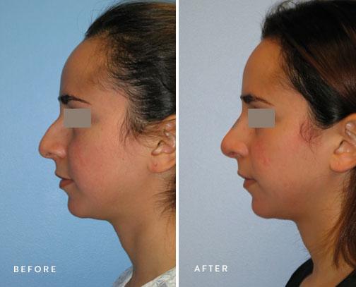 HSUSURGERY_rhinoplasty-before-after-17.jpg