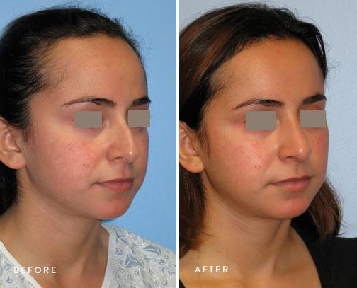 HSUSURGERY_rhinoplasty-before-after-18.jpg