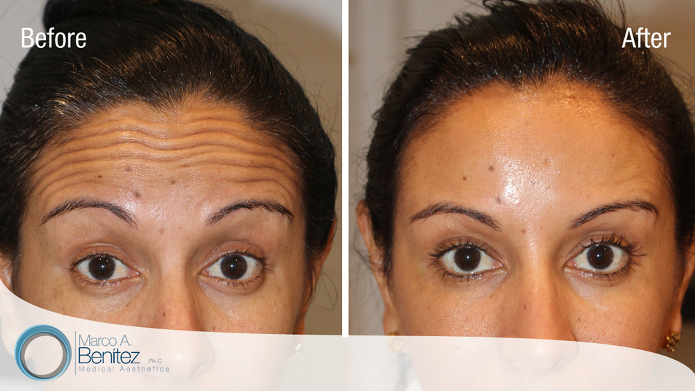 Forehead Wrinkle Correction