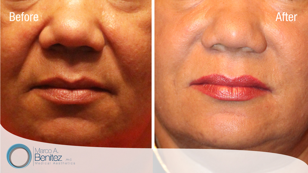 Correction of Nasolabial Folds