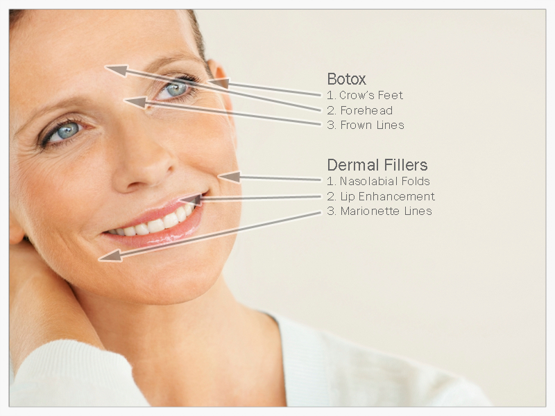Where to use Botulinum Toxin Type A vs Dermal Filler