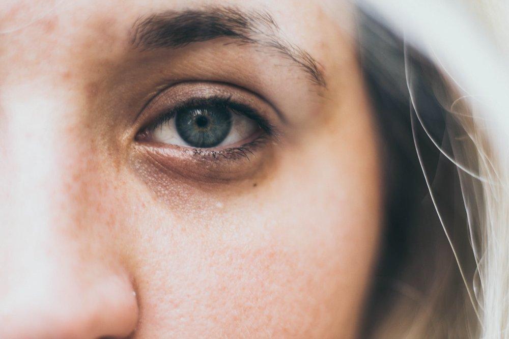 Eye bags.jpg