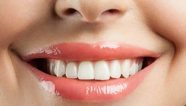 Natural Teeth Whitening.jpg