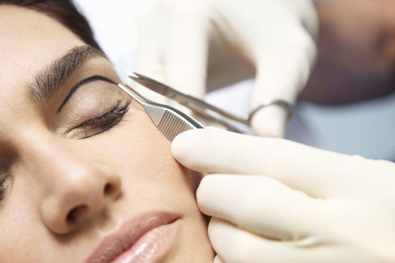 Eyelid Surgery.jpg