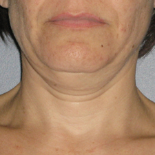 Ultherapy-0026-0086W_0Day_BEFORE_Neck1_low-res.jpg
