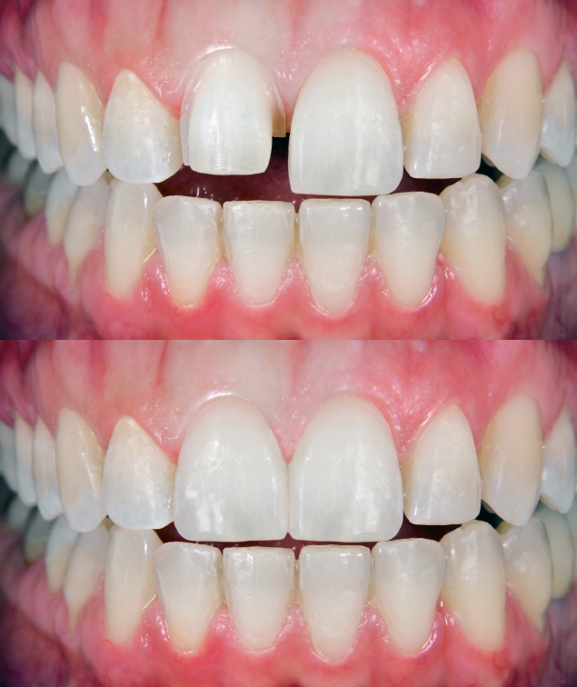 dr-mikula-veneer-before-after.jpg