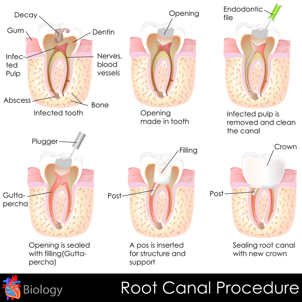 stock-illustration-25578650-root-canal-procedure.jpg