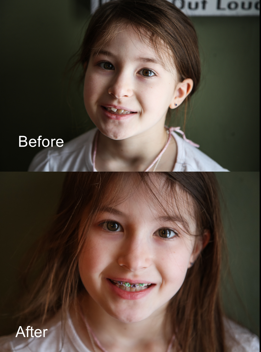 beforeandafterbraces.jpg