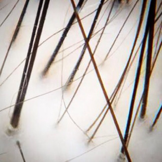 Follicular miniaturization in the course of genetic hair loss- hairs get thinner and thinner over time