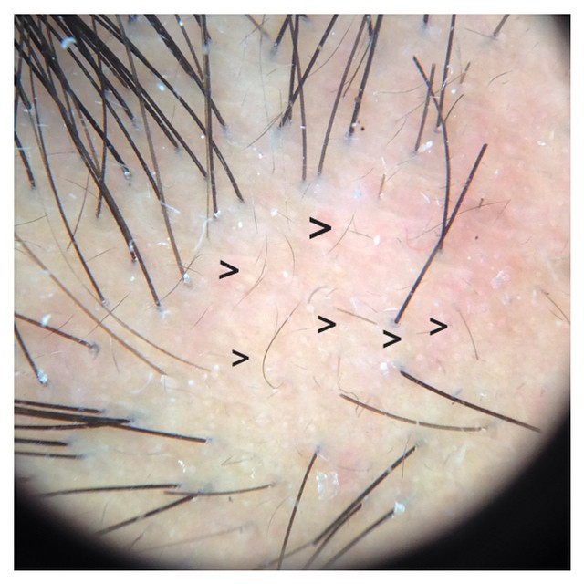 "Traction alopecia: typical small ""vellus"" hair seen in individuals with traction alopecia (hair loss from pulling)"