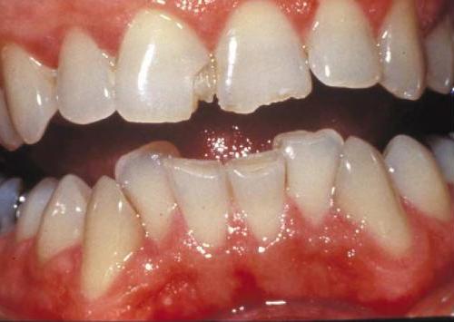 Ted Bundy's teeth