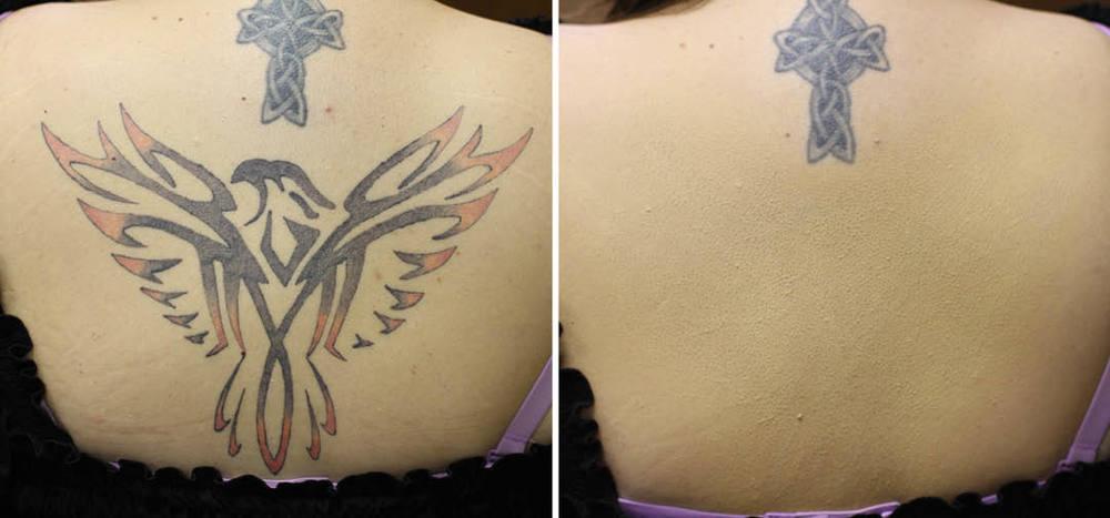 _rawwbeauty tattoo4.jpg