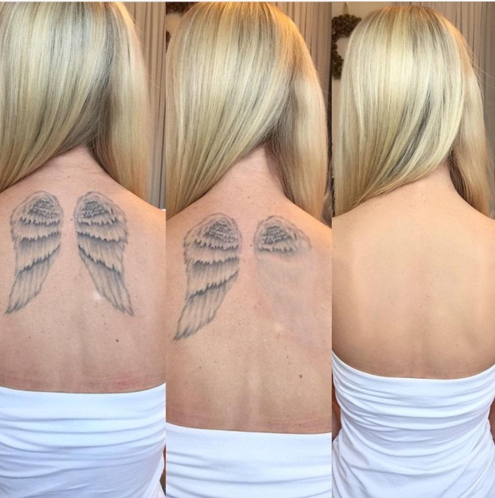Tattoo Cover-Up Services — Rawwbeauty Birmingham Alabama