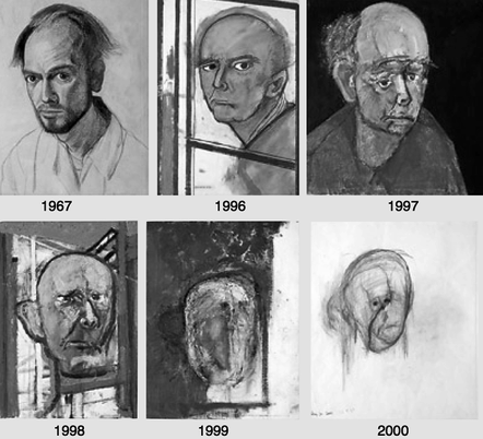 gienchy :      Aself-portrait made by an artist with alzheimer .   This is really sad.