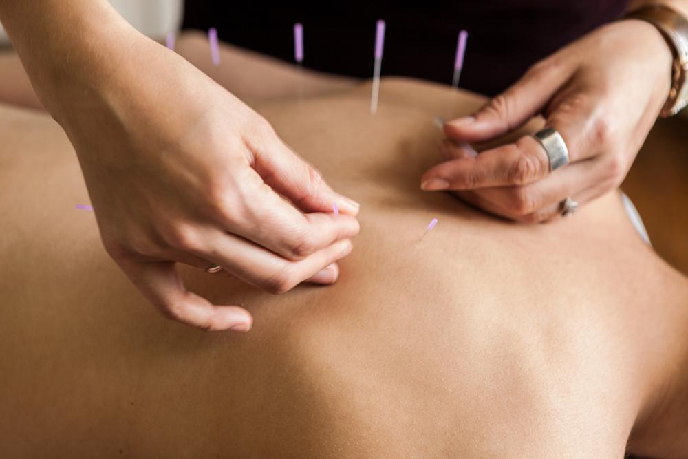Close up acupuncture 1