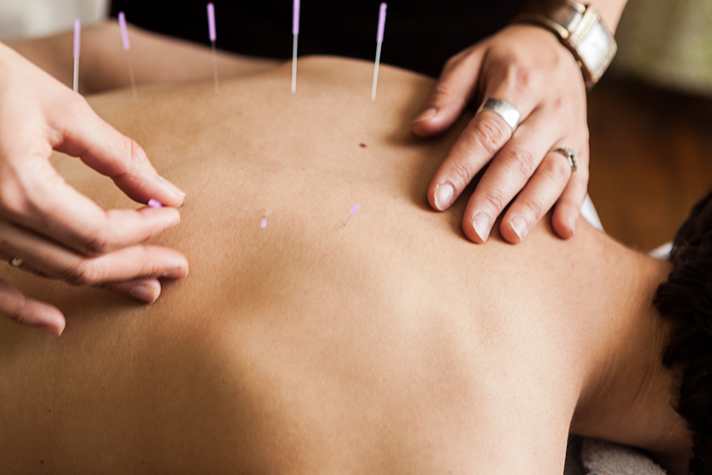 Close up acupuncture 2