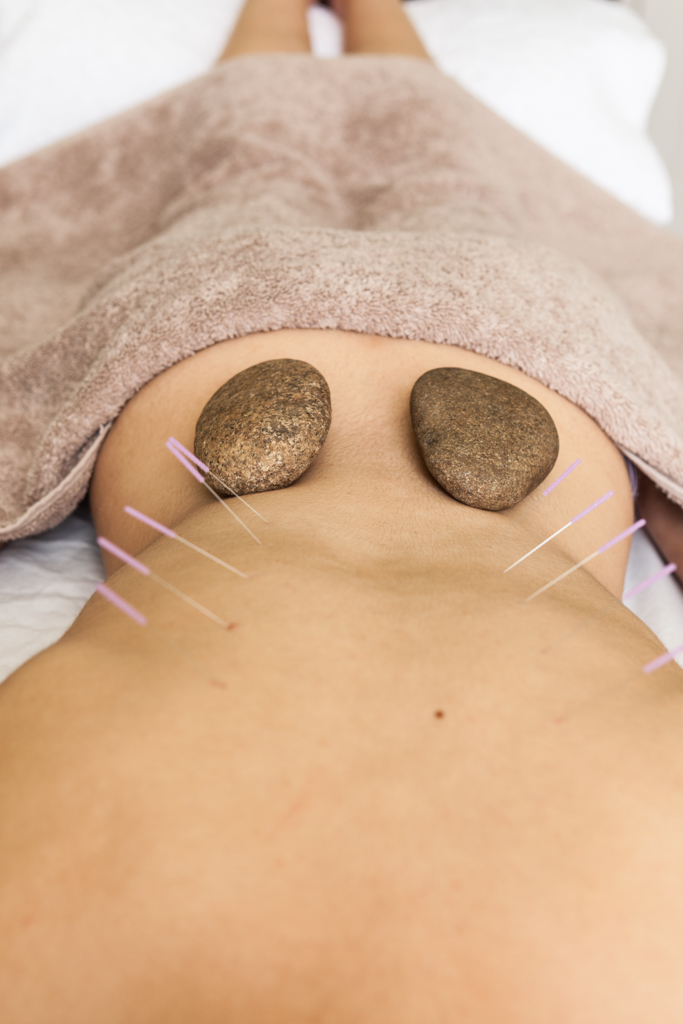 Hot stones and acupuncture
