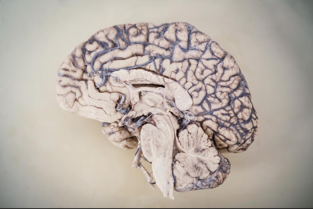 Brain Bank