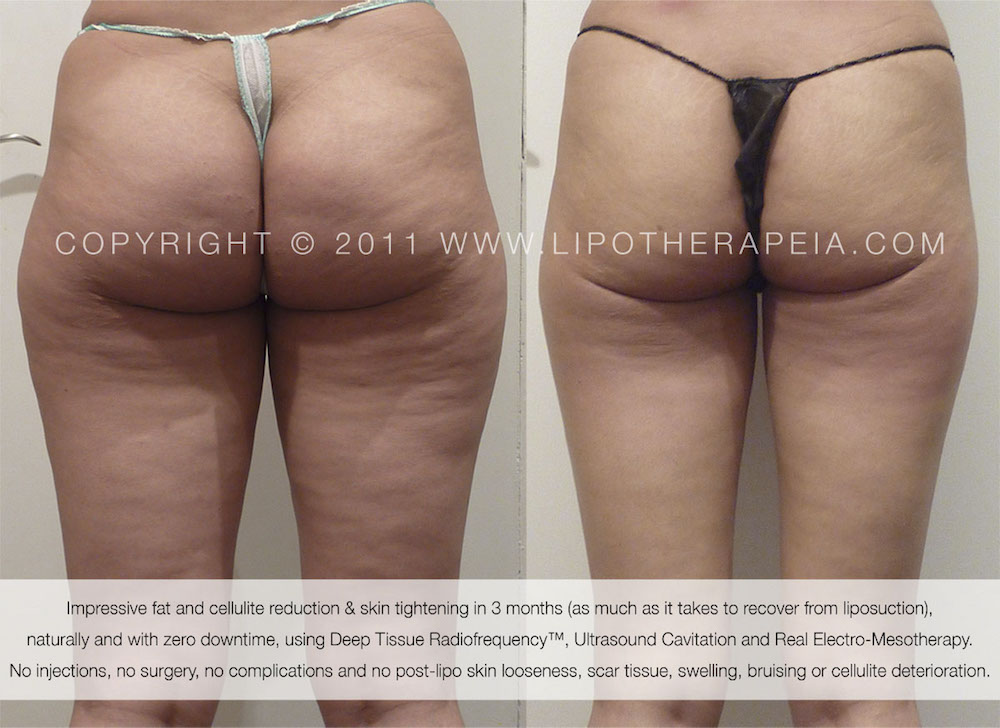 Real before and after cellulite pictures, from LipoTherapeia