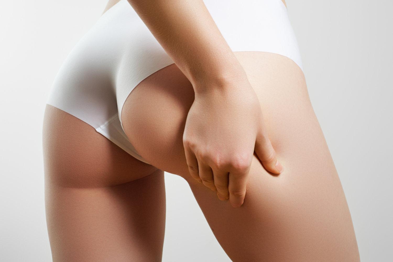 Résultat d'image pour quelle cellulite